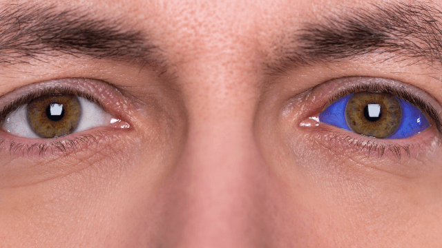 Guy whose eyeball tattoo didn't go horribly wrong explains safer way to put needles in eyes.
