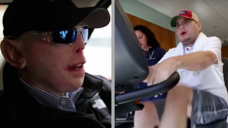 This volunteer firefighter's miraculous face transplant will bring a smile to anyone.