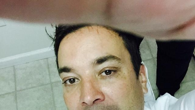 Jimmy Fallon's last injury went so viral, he hurt himself again.
