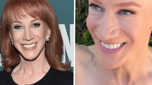 Kathy Griffin went completely shaved head to support her sister's battle with cancer.