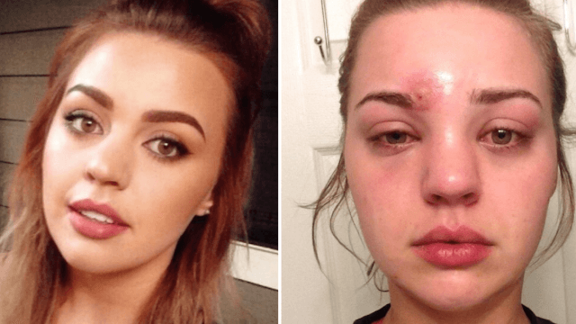 Woman's traumatizing tale will scare you off from ever popping another pimple.
