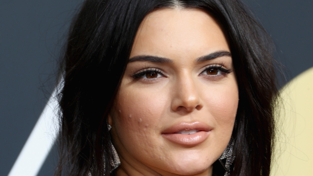 Kendall Jenner had the best response to trolls who shamed her for having acne on the red carpet.