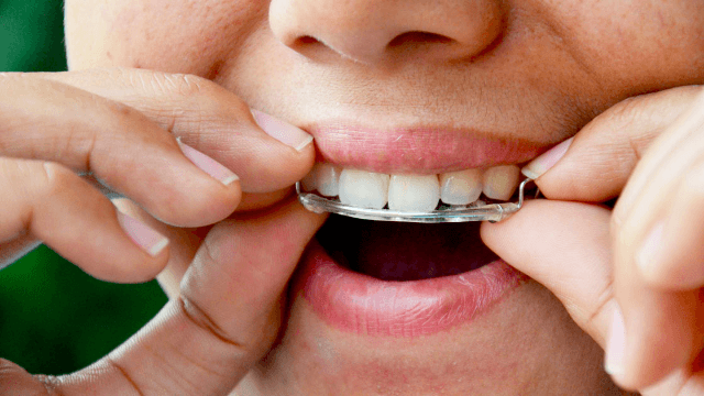 Former dentist designs a sex retainer because nothing's more arousing than orthodontia.