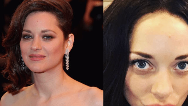 Marion Cotillard now has Kardashian lips and fans are not happy.