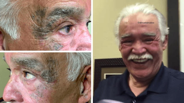 Seeing this guy's 'mask' of blackheads get cleared away is proof that popping videos help people.