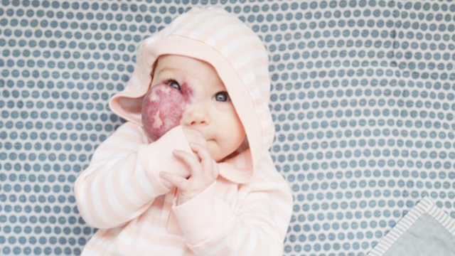 Mom's post about her baby daughter's unusual facial birthmark goes viral.