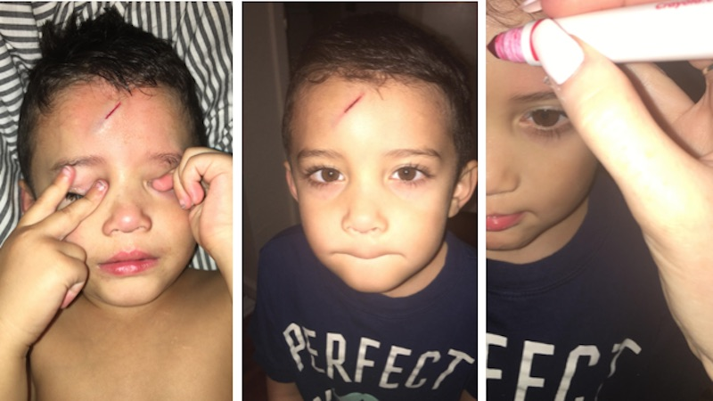Mom finds a very nerdy way to treat her son's forehead cut. It works like magic.