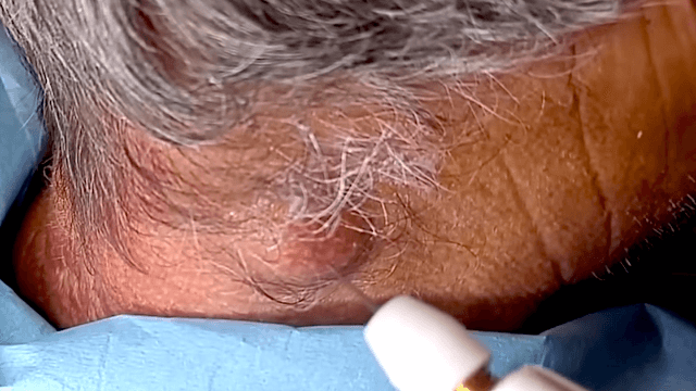 Doctor pops a huge cyst on a man's neck and what comes out looks like ramen.