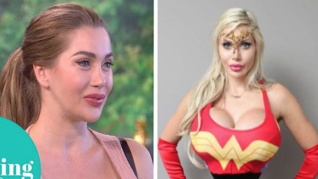 Woman removes six ribs to look like Wonder Woman. How empowering?