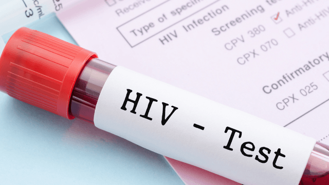 Science is getting closer to finding a cure for HIV.