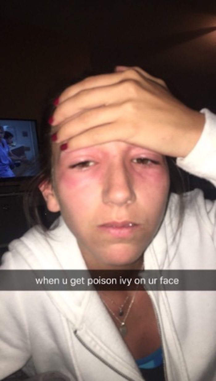 Girl gets poison ivy in her eyes. The Internet—and her sister—delights in how hilarious she looks.