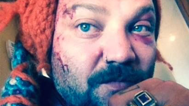 Some rappers from Iceland beat the crap out of Bam Margera.