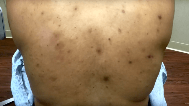 In two visits, this woman's very productive cyst condition is largely healed by Dr. Pimple Popper.