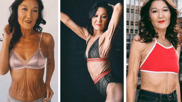 This 26-year-old model with a rare disorder is not afraid to show some skin.