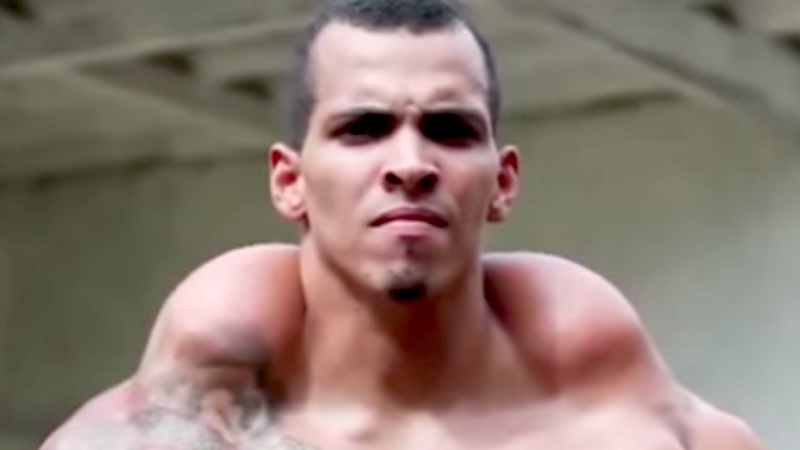 This bodybuilder injected his biceps with oil to look like the Hulk and almost lost his arms.
