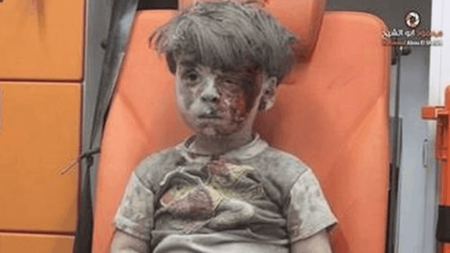 This is what Omran Daqneesh, the little boy from this iconic Syria photo, looks like today.