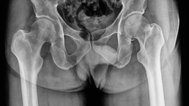 Scientists discover the ironic reason men stopped having penis bones.