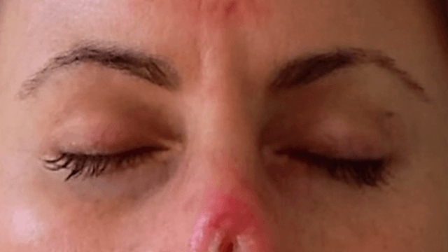 Woman uses home cancer remedy, ends up with a hole in her nose. You will need a bag to vomit in.