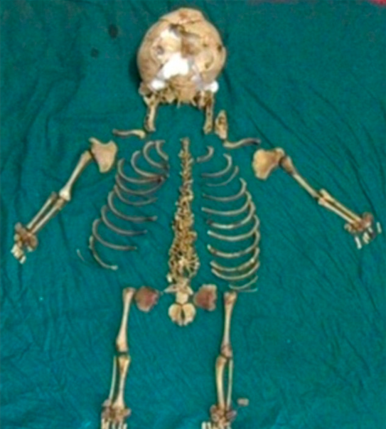 Doctors found a 36-year-old baby skeleton inside a woman's body.