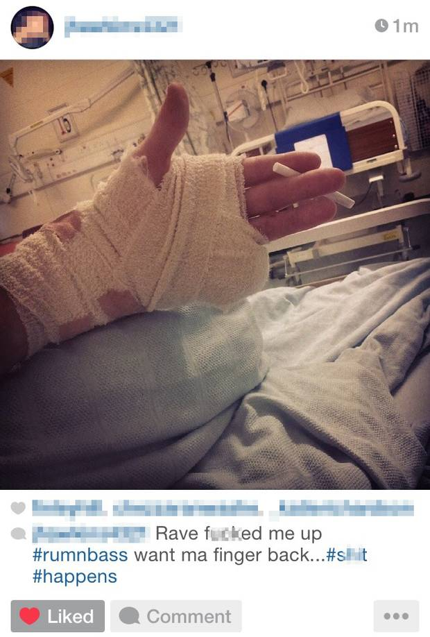 "Teen accidentally rips off his own finger during a rave, keeps dancing because ""bass was hard."""