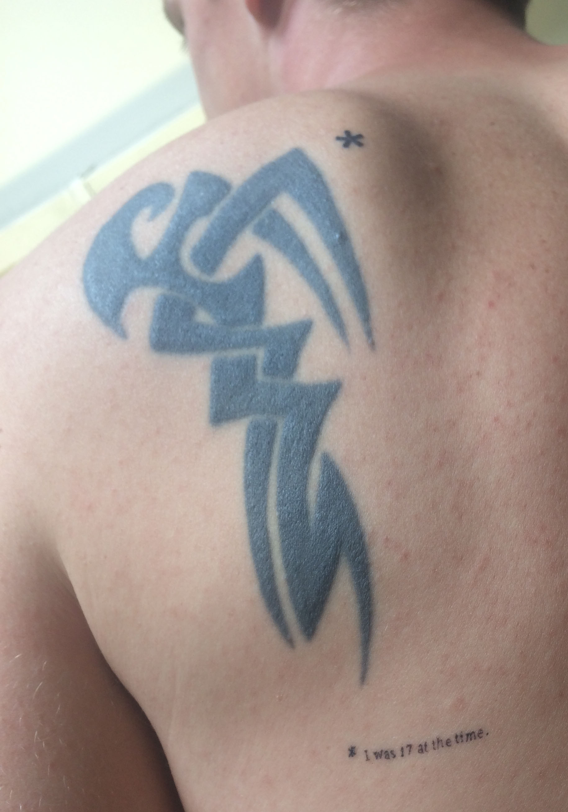 This guy got an ugly tribal tattoo, but don't worry, he fixed it.