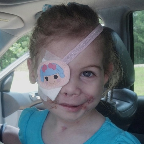 Uh oh. That little girl who got kicked out of KFC because of the scars on her face? Yeah, looks like that was fake.