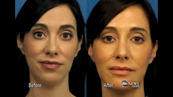 Woman gets plastic surgery to look better in her selfies.