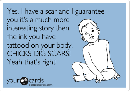 Yes, I have a scar and I guarantee you it's a much more interesting story then the ink you have tattood on your body.  CHICKS DIG SCARS! Yeah that's right!