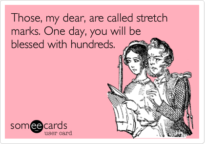 Those, my dear, are called stretch marks. One day, you will be