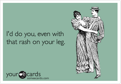 I'd do you, even with that rash on your leg.