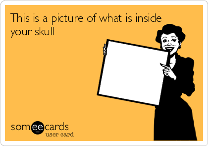 This is a picture of what is inside your skull