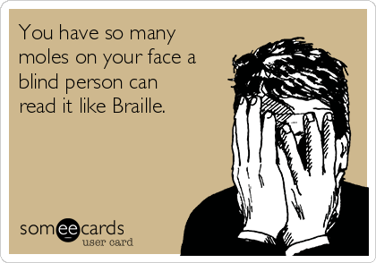 You have so many moles on your face a blind person can read it like Braille.